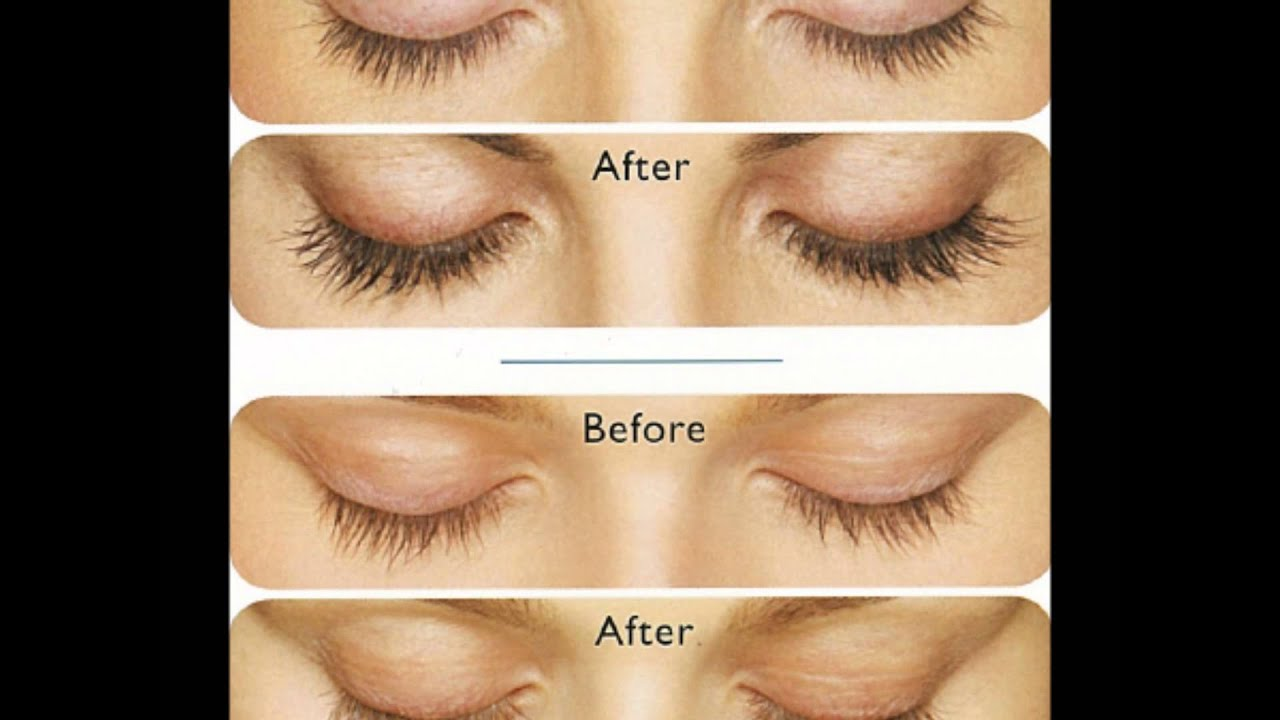 Latisse (Bimatoprost) Eyelash Growth: Before and After ...