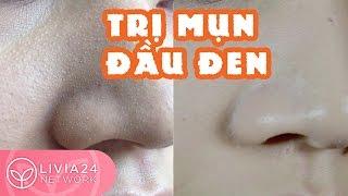 Mẹo trị mụn đầu đen sạch, nhanh và se khít lỗ chân lông | Webtretho