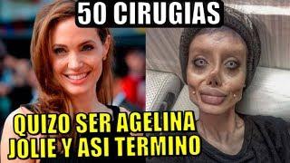 TERRIBLE! QUERIA PARECERSE A ANGELINA JOLIE SE SOMETIO A 50 CIRUGIAS Y TERMINO ASI