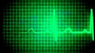 Heartbeat flatline