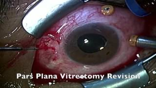 Incidental Subfoveal Perfluorocarbon Heavy Liquids After Vitrectomy For Giant Retinal Tear