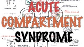 Compartment Syndrome - Overview (signs and symptoms, pathophysiology, treatment)