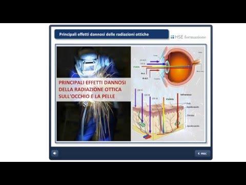 Rischi da esposizione a Radiazioni Ottiche Artificiali (ROA)