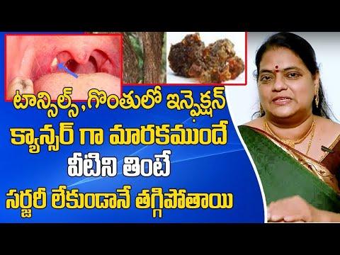గొంతు క్యాన్సర్ ని ఎలా గుర్తించాలి | Cancer Symptoms in Telugu | Throat Cancer Treatment | SumanTV