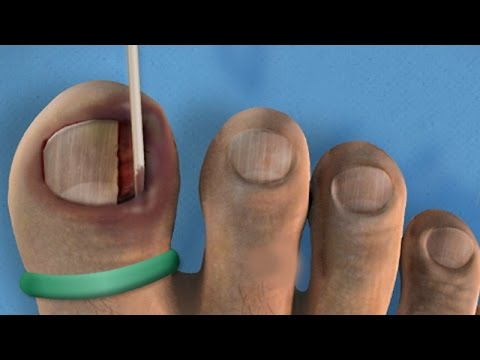 Ingrown Toenail Relief Musica Movil Musicamoviles Com