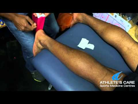 Performance taping with Toronto Chiropractor Dr. Kevin Deonarine