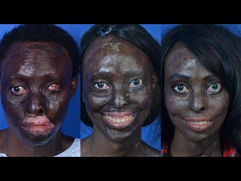 Permanent Makeup Los Angeles - Burn Victim Scar Camoflage