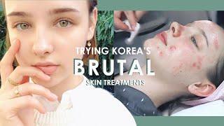 My First BRUTAL Korean Dermatology Experience 💉 #BANOBAGI Laser Treatments   Sissel