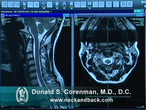 How To Read A Mri Of The Normal Cervical Spine Neck