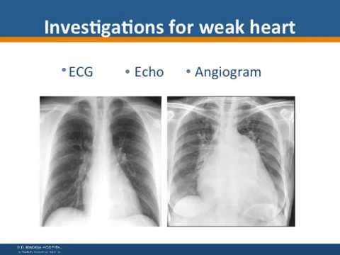 Lifestyle Related Heart Ailments - P. D. Hinduja Hospital
