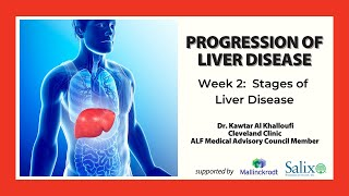 Progression of Liver Disease Webcast Series: Stages of Liver Disease