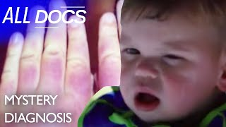 The Boy Who Kept Swelling: Erthropoietic Protoporphyria (EPP) | Medical Documentary | Reel Truth