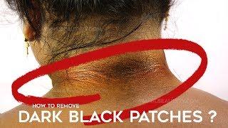 How to Get Rid of Dark Neck Tamil Beauty Tips | Remedy for Lighten Dark Neck