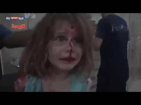 شاهد|| طفلة سورية مغطاة بالدماء تصرخ بحثًا عن والدها