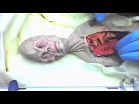 Video of alien autopsy in Russia in 1969 UFO OVNI. Un documental muestra imágenes impresionantes de la relación del ejército ruso con la vida alienígena