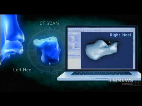 3D Printed Heel Implant at St Vincent's Private Hospital Melbourne on 9 News
