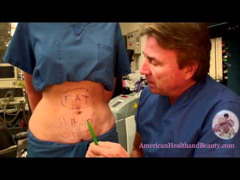 Liposuction Miami Process What Is Liposuction Surgery