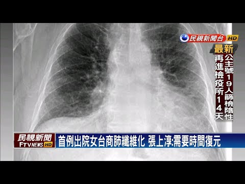 首例出院女台商留後遺症 張上淳證實:有肺纖維化-民視新聞