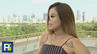 Una mujer desfigurada busca inspirar a otros con su ejemplo