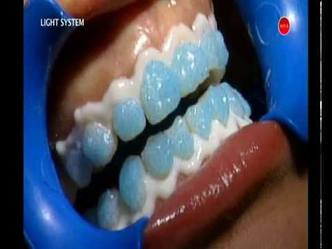 QuickWhite teeth whitening In-Surgery