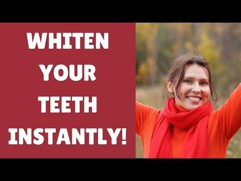 3 Teeth Whitening Hacks For Whiter Teeth