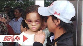 Ai được quyền nuôi dưỡng bé 4 tuổi bị bạo hành?   VTC
