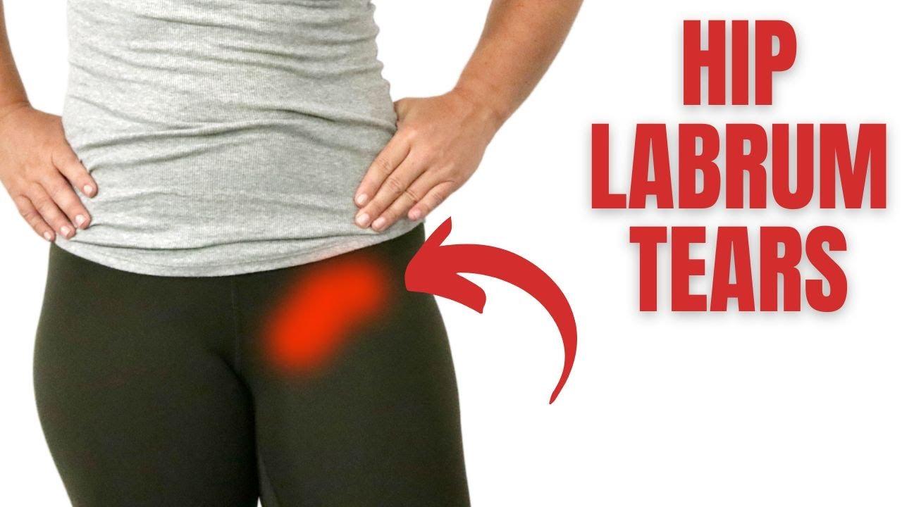 Hip Labral Tear Treatment Amp Therapy Huntington Beach