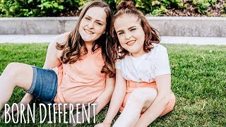 The Twins That Were Cut In Half | BORN DIFFERENT