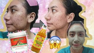Aztec Indian Healing Clay Mask for 5 days?! (Review + Demo)