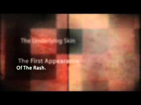 Final Stage Of Shingles Rash Youtube