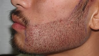 Thuốc Mọc Râu Minoxidil 5% của Mỹ - Cơ Địa Để Cho Bộ Râu Đẹp