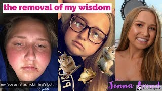 I GOT MY WISDOM TEETH OUT! | Jenna Arend ♡