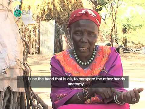 Weird Therapies: Treating A Fracture, Turkana Style - Smashpipe Style