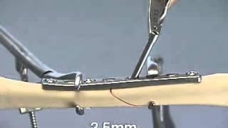 neutral plate + lag screw