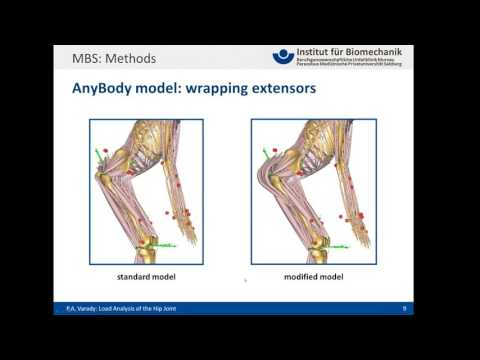 [Webcast] - Load Analysis of the hip joint for occupational activities
