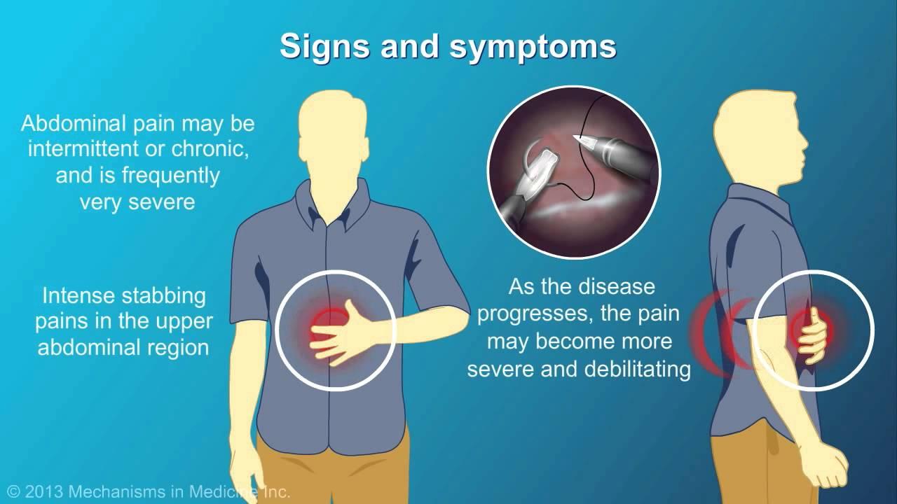 Pancreas: Pancreas Symptoms
