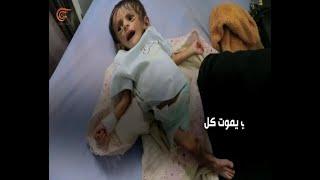 وزارة الصحة اليمنية: عدد ضحايا الحرب أكثر من 40 ألف     -