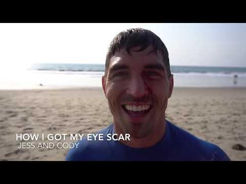 How I Got My Eye Scar | Jess and Cody