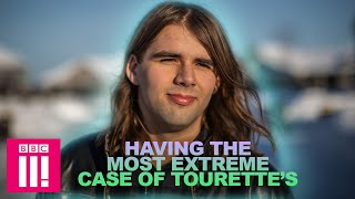 I Have the Most Extreme Case of Tourette's | Living Differently