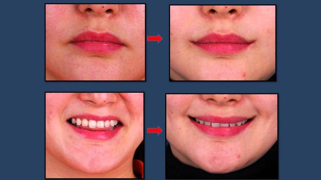 Mouth Corner Lift Korea Plastic Surgery Youtube