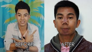 Teenager's face gets deformed after getting operated by fake nurse | Investigative Documentaries