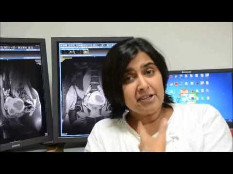 "Patient Aparna Phalnikar speaks about ""Non Surgical Fibroid Treatment at Jaslok Hospital""."