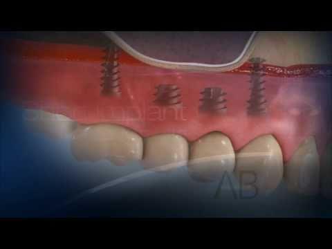 AB Dental Implants - Short Implant in the Maxilla - YouTube