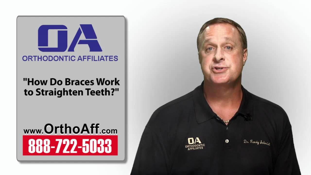 how do braces work to straighten teeth