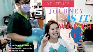my VENEERS experience, is it WORTH it?