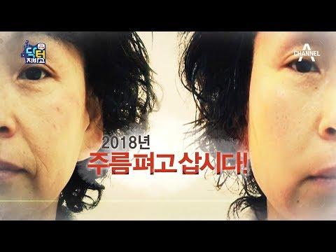 [교양] 닥터지바고 174회_180122 - 2018년, 주름 펴고 삽시다!