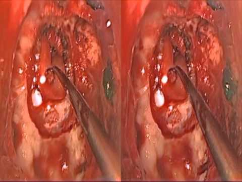 3-D Endoscopic Transsphenoidal Pituitary Surgery: Rathke's Cleft Cyst