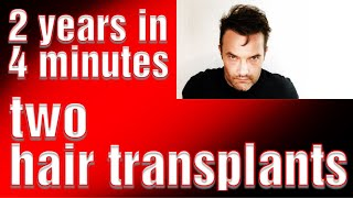 My 2 years in 4 minutes after two hair transplants Hairloss help Hair transplant turkey istanbul