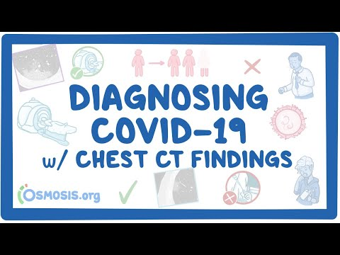 Diagnosing COVID-19 with Chest CT Findings