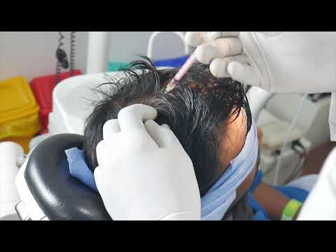 Hair Loss Treatment - Platelet Rich Plasma (PRP), Richardsons Hospital, Nagercoil